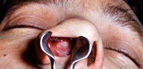 Гипертрофический ринит, его причины и симптомы