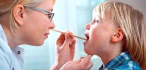 Вирусная ангина у детей: фото и симптомы болезни