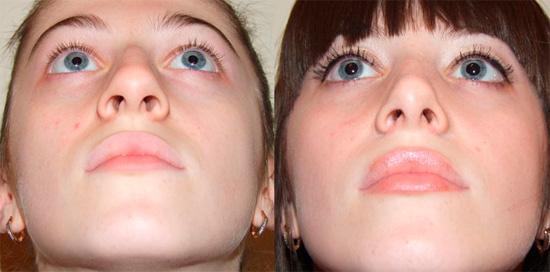 Различие между искривленной носовой перегородкой и нормальной
