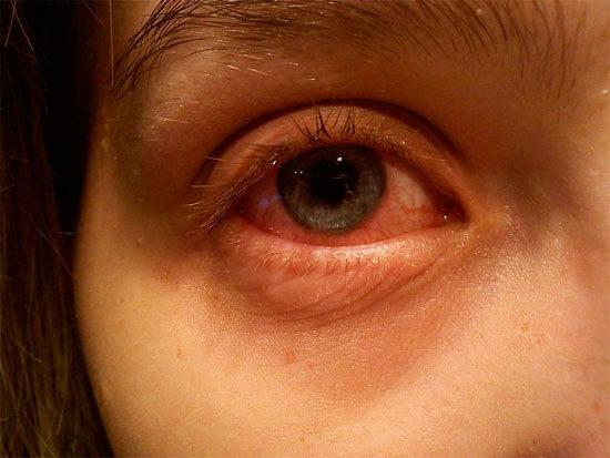 Повышение давления в глазных капиллярах