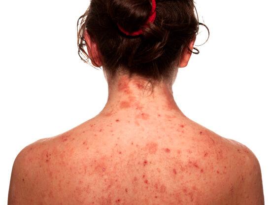 Аллергия на коже женщины
