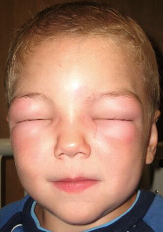 Сильный аллергический отек на лице мальчика