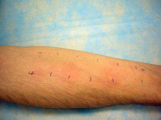В прик-тесте на кожу в разных местах наносятся разные аллергены. В месте нанесения аллергена, к которому чувствителен больной, появляются выраженные признаки реакции.