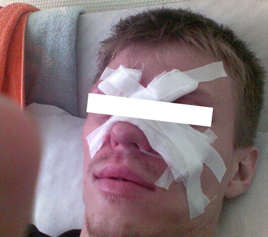Фото мужчины с повязкой на лице
