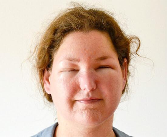 Поговорим о типичных признаках аллергического насморка...