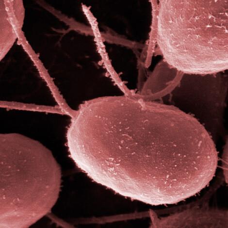 Простые сахара являются питательной средой для быстрого развития бактерий.