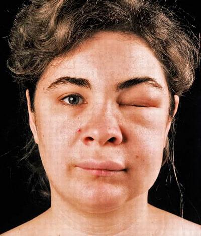 как проявляется аллергия на спираль