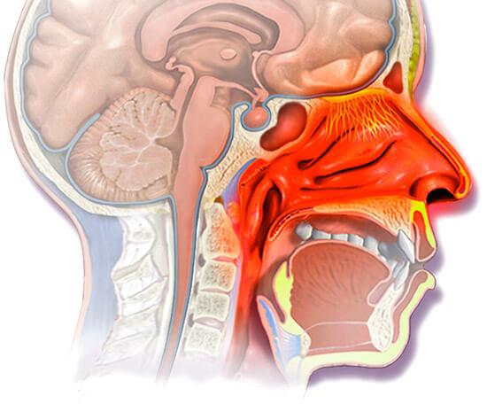 Схема лечения насморка
