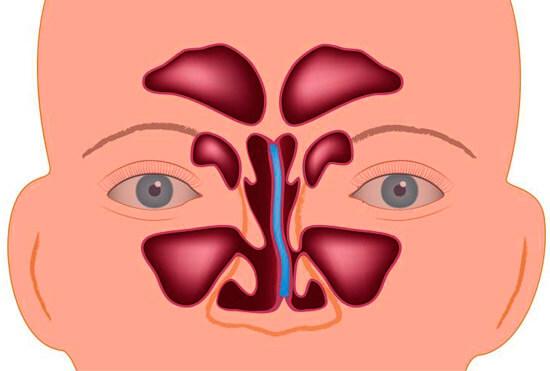 Деформированная перегородка носа вызывает хронический насморк, лечение этой патологии только хирургическое.