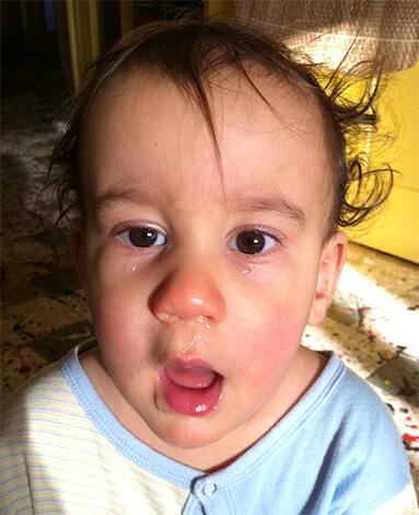 Ринорея у ребенка
