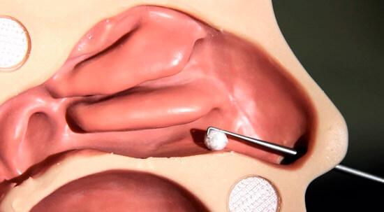 Извлечение инородного тела из носа