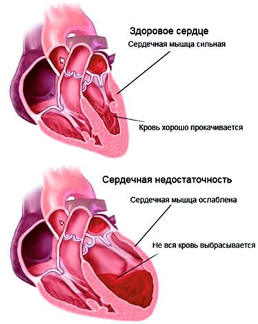 Осложнения от ангины