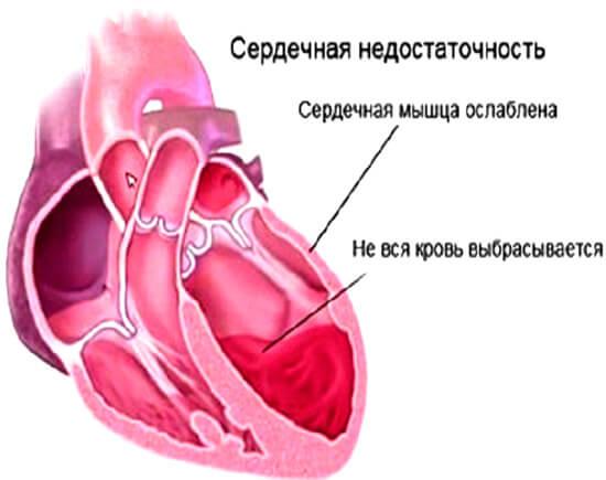 Осложнения ангины
