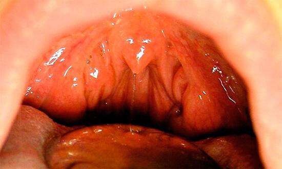 Иногда при катаральной ангине воспаление миндалин невелико
