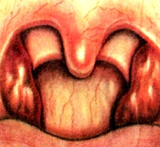 Иллюстрация катаральной ангины из учебника Пальчуна