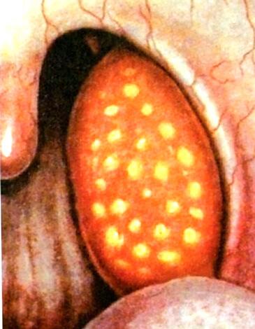 Иллюстрация фолликулярной ангины из учебника Пальчуна