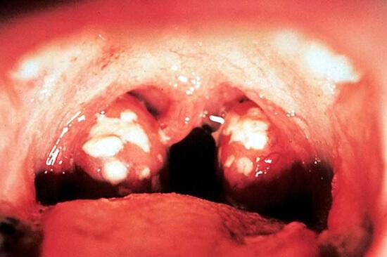 При лакунарной ангине, в отличии от фарингита, поражаются только миндалины