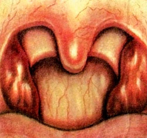 Горло при катаральной ангине