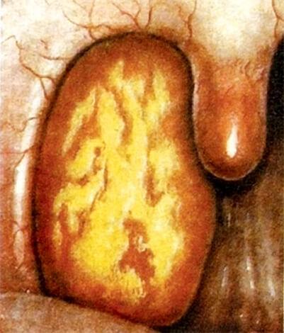 Учебные пособия акцентируют внимание на внешнем виде миндалин при лакунарной ангине, по которому ее можно четко отличить от других форм