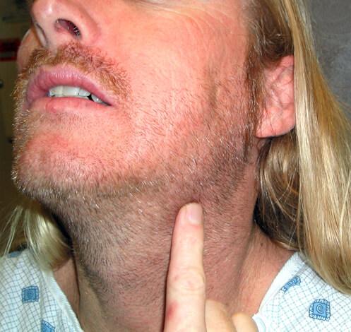 Абсцесс, который привел к появлению заметной наружной опухоли, скорее всего придется удалять оперативным путем.