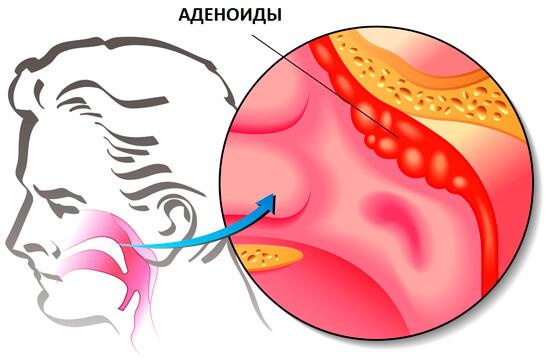 Аденоиды - разрастание носоглоточной миндалины