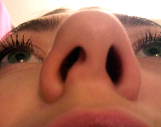 Искривление перегородки носа.