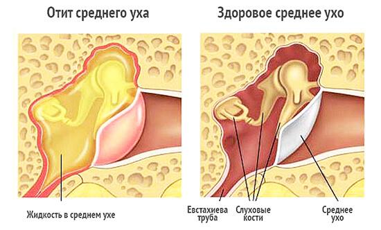 Изображения здорового уха и уха при отите