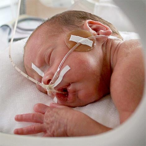 Терапия новорожденного с гипоксией