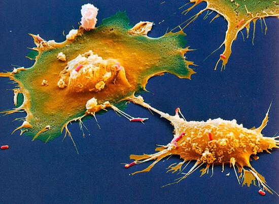 По окончании ангины в миндалинах сохраняется большое количество мигрировавших сюда макрофагов, и вероятность закрепления здесь новых бактерий минимальна.