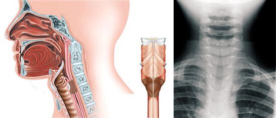 В случае тяжелого стеноза гортани для того, чтобы открыть доступ воздуху в легкие, требуется трахеотомия. К счастью, такие случаи, как осложнения грибковой ангины, редки.