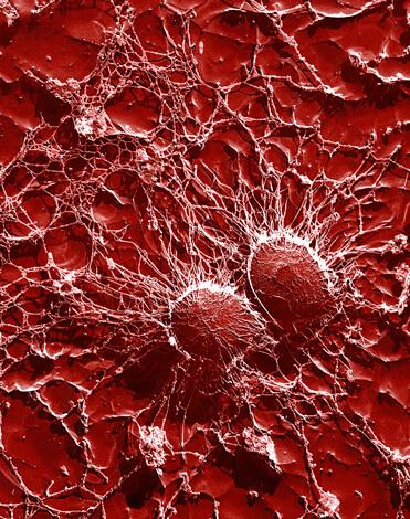 При начале воспалительного процесса фагоциты со всего организма активно движутся в направлении пораженных тканей.