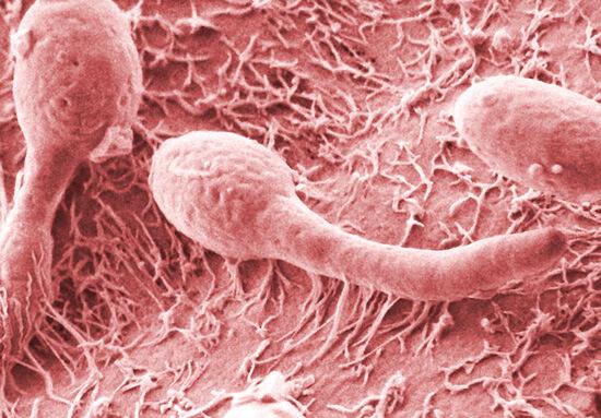 Иногда грибковый тонзиллит по внешним проявлениям очень напоминает стандартную ангину.