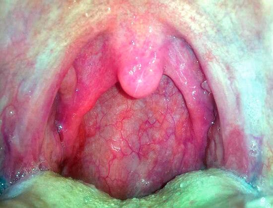 Хорошо видно, что при покраснении горла миндалины не увеличиваются. Это нормально для вирусного фарингита.