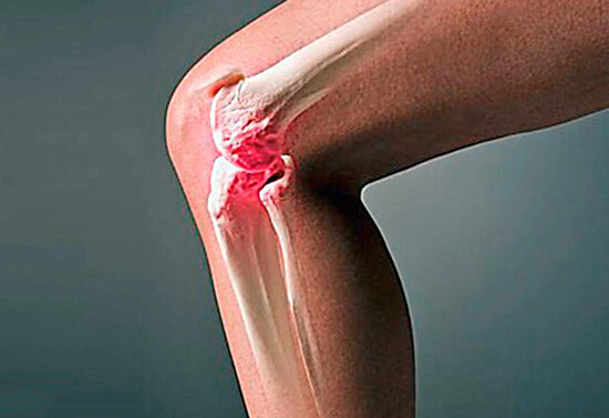 Ревматическая лихорадка проявляется себя не только болями в сердце, но и воспалениями суставов.