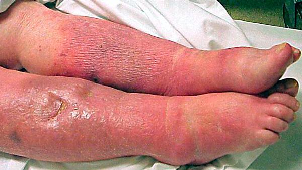 Результат отказа от антибиотиков при лечении бактериального заболевания.