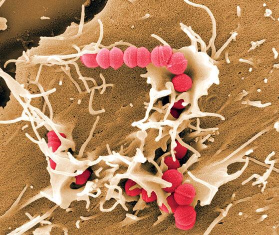 На сегодня не доказано, что прополис способен уничтожать стрептококка в очагах инфекции в организме.