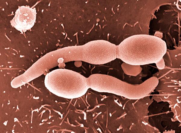Белый густой налет, образуемый грибками, часто путают с гноем при ангине.