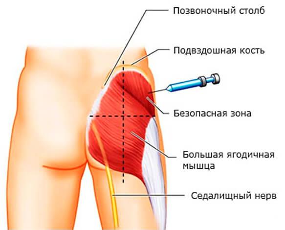 При инъекции главное - не попасть в нерв или в позвоночный столб.