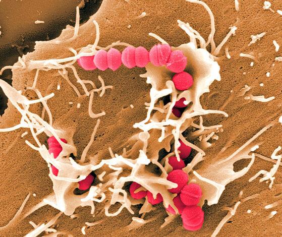 Стафилококк вызывает ангину реже стрептококка, но бороться с ним сложнее.