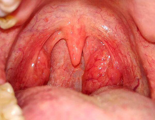 Типичный вид горла при катаральной ангине - той самой, при которой часто не повышается температура.