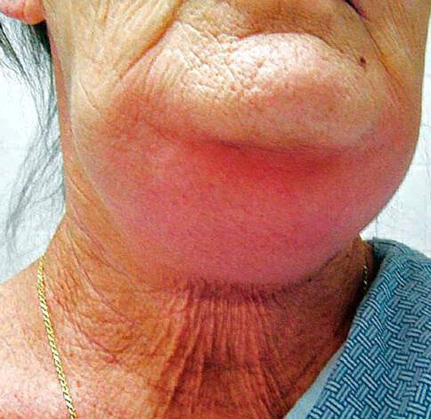 Такие абсцессы чаще всего приходится вскрывать снаружи, после чего останется глубокий шрам.