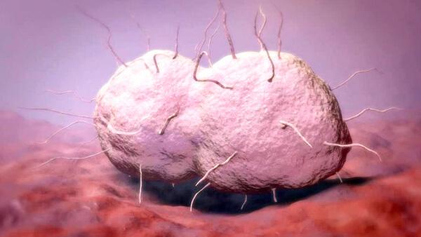 Гонококковая ангина - крайне редко диагностируемая ситуация.