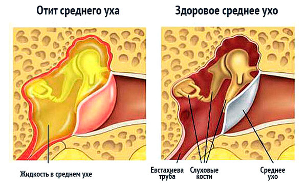 Из-за сложности дренирования полости среднего уха при отите иногда приходится делать прокол барабанной перепонки.