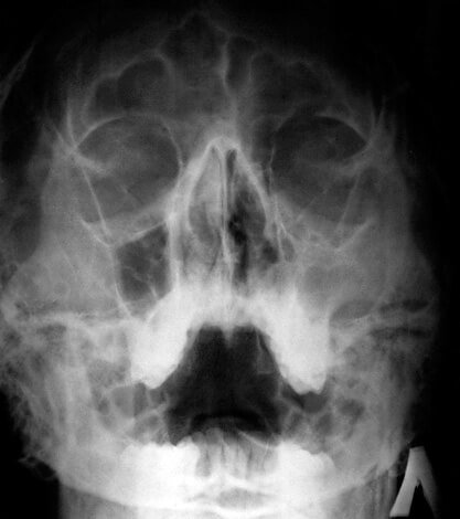 Никакие лекарственные средства не помогут выровнять носовую перегородку - это можно сделать только хирургическим путём.