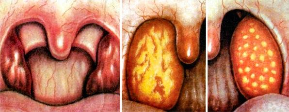 Только эти три формы являются типичными стрептококковыми ангинами.