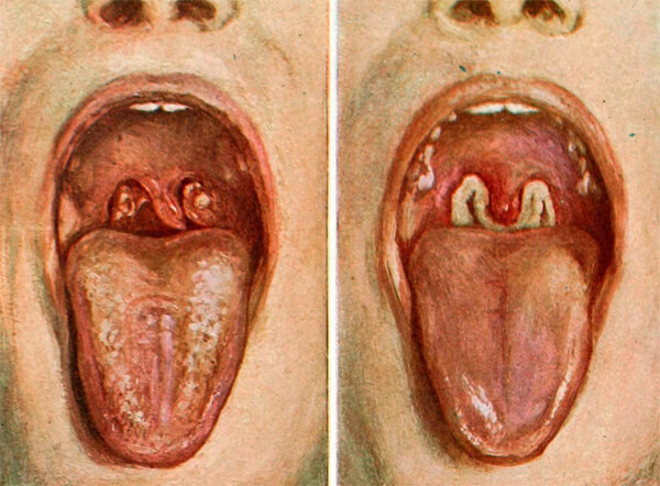 На ранних стадиях дифтерию легко можно спутать с гнойной ангиной.