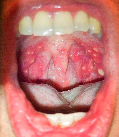 Как выглядит горло при герпесной ангине фото у детей
