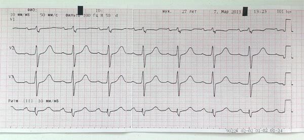Шум в сердце появляются, если поражение сердечной мышцы прогрессирует и приводит к развитию пороков сердца.