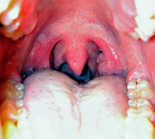 Зачастую проявления болезни со стороны горла оказываются даже более тяжелыми, чем ринит.