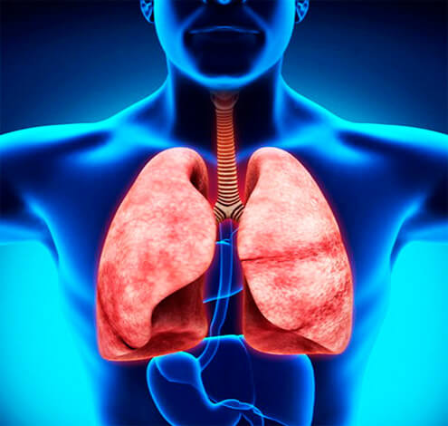 Небулайзер применяется тогда, когда лекарства по-иному невозможно доставить к больному органу. При насморке это просто сделать обычными каплями, при бронхите же нужен мелкодисперсный туман, генерируемый именно небулайзером.